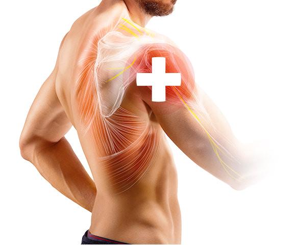 Syndrom bolestivého ramene